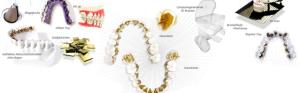Linguale unsichtbare Zahnspange
