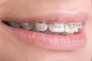 festsitzende Zahnspangen