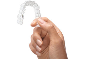 Herausnehmbare Zahnspangen