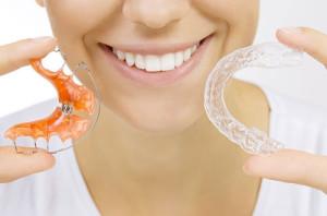 Zahnspangen Retention